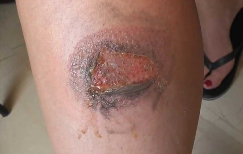 motorcycle safety pipe burn1